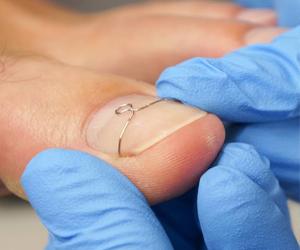 Лечение и коррекция вросшего ногтя Титановой нитью